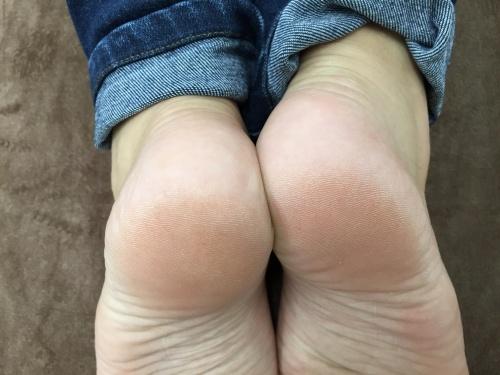 足の長さ(術前)