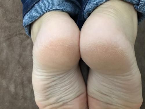足の長さ(術後)