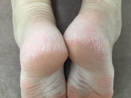 右足が短い状態