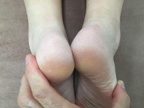 右足の短い状態